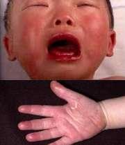 بیماری کاواساکی