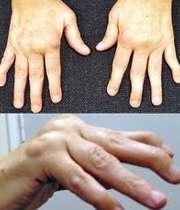 بیماری آرتریت روماتوئید انگشتان دست