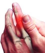 آرتروز انگشتان دست