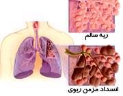 بیماری انسداد مزمن ریوی