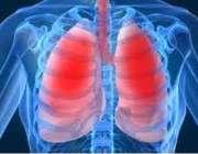 Сегодня - Всемирный день борьбы против хронической обструктивной болезни легких.