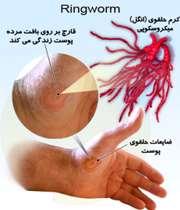 کرم حلقوی یا عفونت قارچی پوست به شکل حلقوی