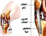 بیماری اُسگود ـ شلاتر با درد زانو