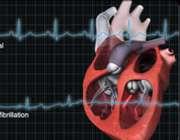 آریتمی در بیماری قلبی