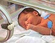 преждевременный ребенок