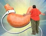 جراحی کاهش وزن