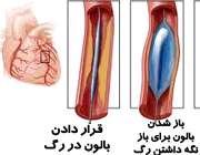 آنژیوپلاستی قلبی