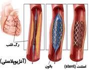 آنژیوپلاستی برای باز کردن رگ خونی مسدود