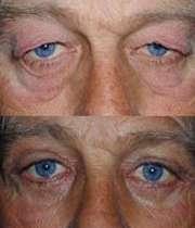 عمل جراحی زیبایی پلک چشم