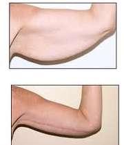 عمل جراحی زیبایی بازو