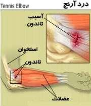 درد خارج آرنج دست