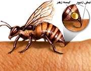 نیش زدن زنبور