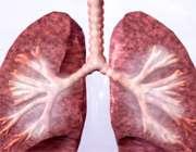 ۸ توصیه برای بیماری مزمن تنفسی