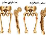 نرمی استخوان