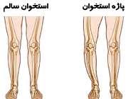 بیماری پاژه استخوان