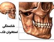 شکستگی استخوان فک صورت