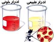 وجود خون در ادرار کودکان، نشانه چیست؟