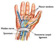ہاتھ کی اعصابی بیماری