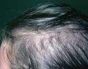 ریزش مو ناشی از کم کاری تیروئید