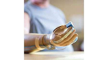 ساخت دست مصنوعی