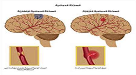 شكل الدماغ