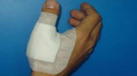 چسب زخم التيام دهنده زخم – جلسه چهارم