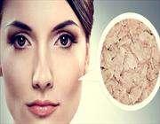 طبيب جلدية: آشعة الشمس وجفاف الجلد أكثر المحفزات لظهور الصدفية