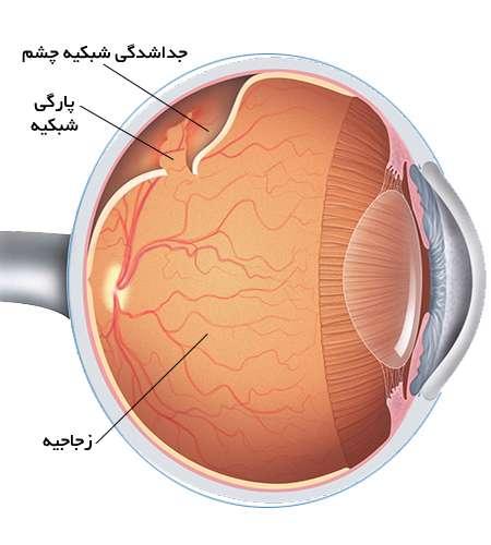 چرا شبکیه چشم سوراخ میشود