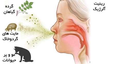 آلرژی بینی