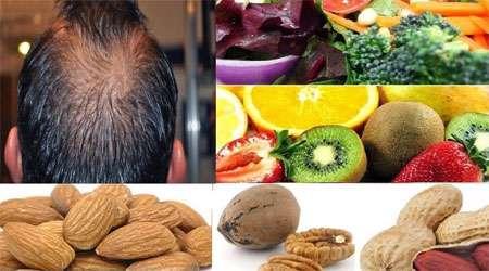 تغذیه و رشد موها , ویتامین رشد سریع مو , ویتامین برای رشد سریع مو , ویتامین برای رشد سریع موها , قرص ویتامین برای رشد سریع مو , ویتامین لازم برای رشد سریع مو , ویتامین های لازم برای رشد سریع مو ,