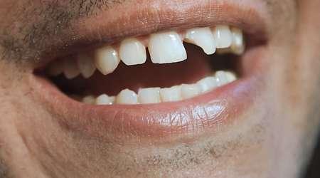 چرا دندان می شکند