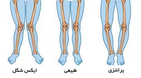 پاهای پرانتزی و ایکس شکل