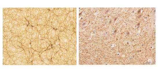 مقایسه ساختار شبکه نورونی (راست) و شبکه کهکشانی (چپ)
