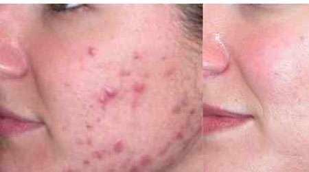تولید لوسیون ضد آفتاب و بهبود دهنده آکنه برای پوست های حساس