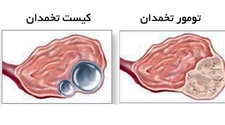 تومور و کیست تخمدان