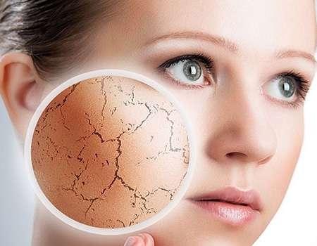 اخصائية في الامراض الجلدية تتحدث عن جفاف البشرة في فصل الشتاء