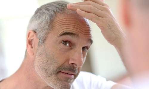 Image result for دانلود عکس سفید شدن مو