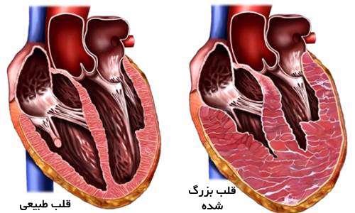 چرا قلب انسان بزرگ می شود
