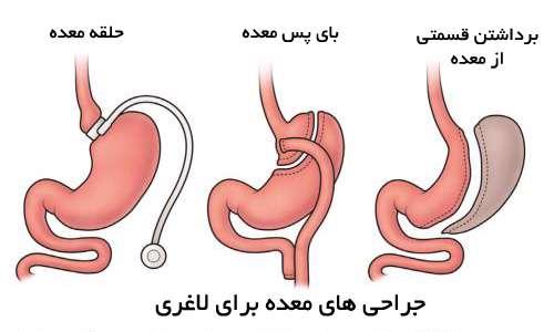 جراحی لاغری معده