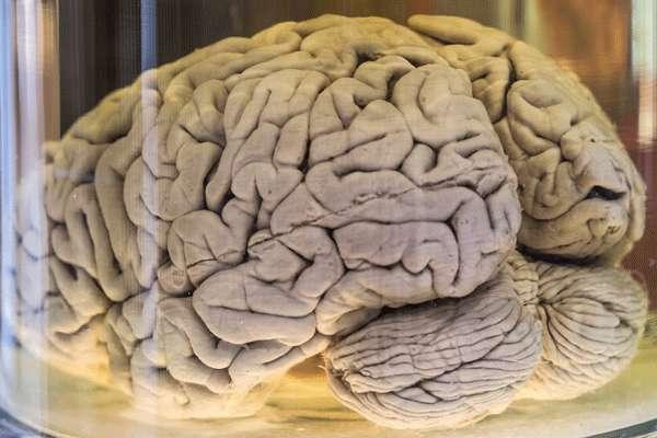 چرا مغز ما دارای چینخوردگی است؟