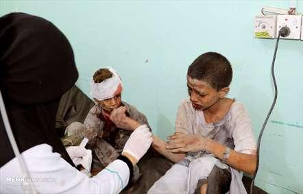 حمله وحشیانه سعودی ها به اتوبوس دانش آموزان یمنی