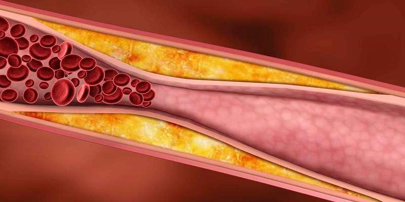 کلسترول چیست و چگونه میتوان آن را کاهش داد؟