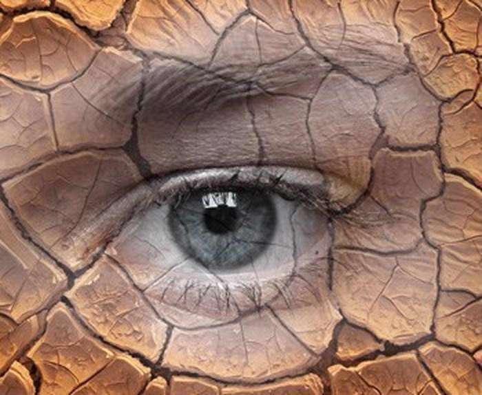 خشکی چشم