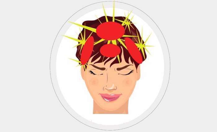 سردرد فعالیتی