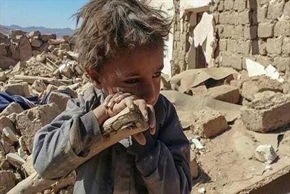 جنایت های سعودی و کودکان یمنی