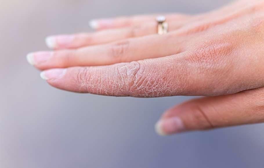 چرا در سرما پوستتان خشک میشود؟