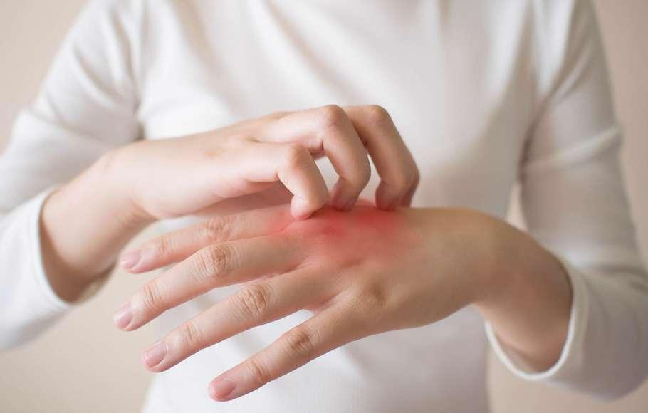 چگونه از تحریکات پوستی پیشگیری کنیم؟