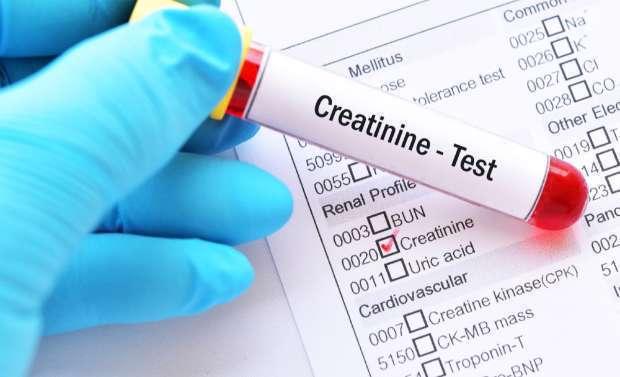 کراتینین بالای خون؛ علائم، علتها و درمان
