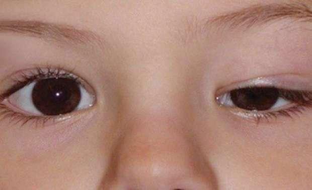 علت و درمان افتادگی پلک چشم