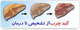 کبد چرب از تشخیص تا درمان